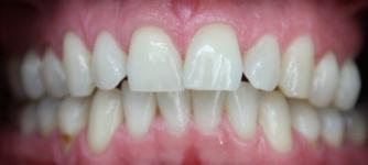 Tanden Bleken Tilburg
